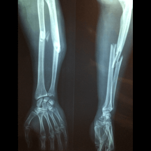 A fracture is a break in a bone from a bigger impact than it can support.